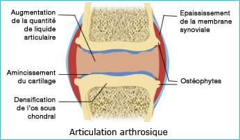 Schéma d'une articulation arthrosique