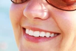 sourire