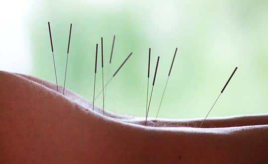 acupuncture-medecine-douce