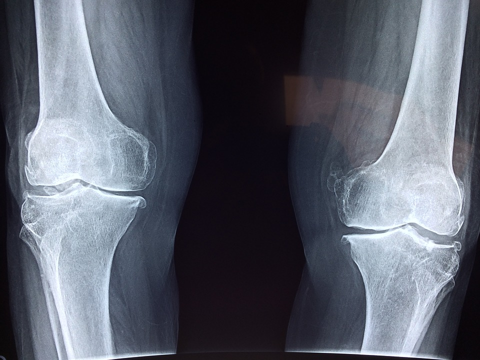 5 exercices pour mieux vivre avec son arthrose