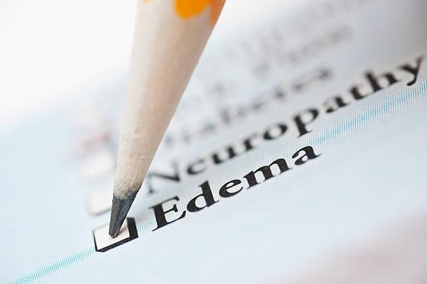 """Check list médicale avec la case """"Edema"""", soit """"oedème"""" en français"""
